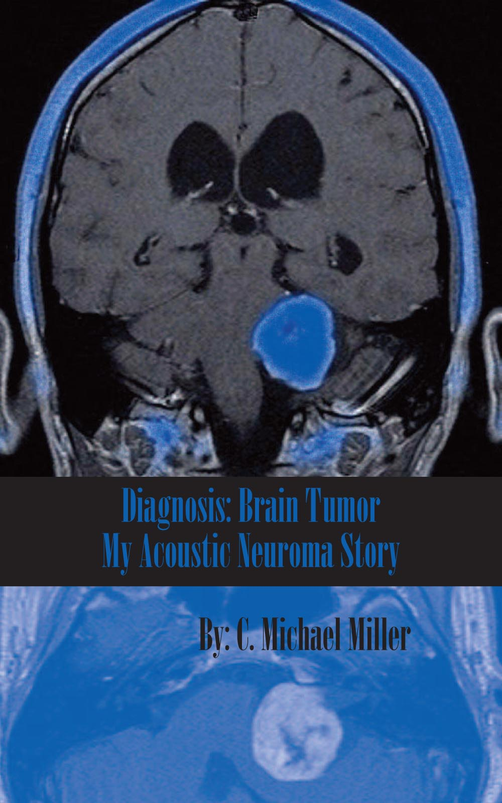 diagnosis  brain tumor  u2013 my acoustic neuroma story